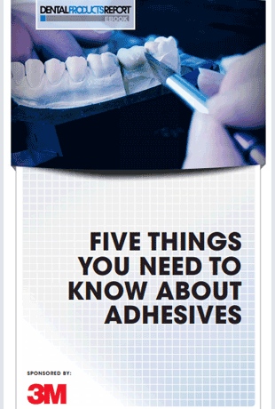 5-things-you-need-to-know-about-adhesives.png